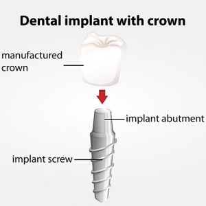 Los Altos Dr. McBirney Dental Implants Model